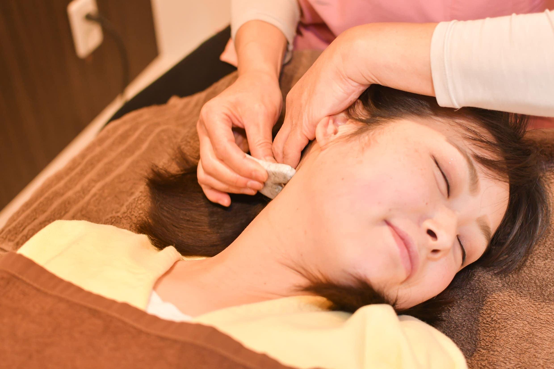 【店頭払い専用】美容鍼施術 (美肌・小顔・幸せ顔・目の疲れ・頭痛・顎こり)のイメージその4
