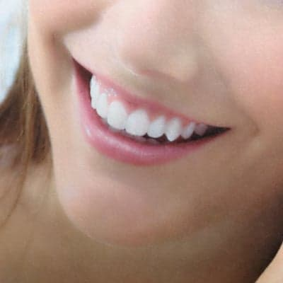 [現地払いのみ]歯のセルフホワイトニング 18回チケット