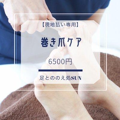 【現地払い専用】巻き爪ケア
