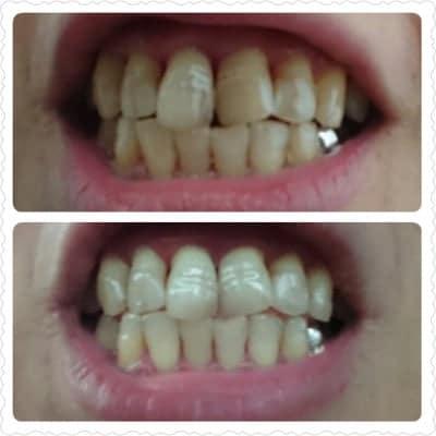 【輝く白い歯】歯のセルフホワイトニング