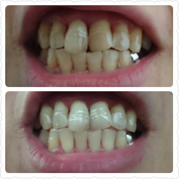 【輝く白い歯】歯のセルフホワイトニングのイメージその1