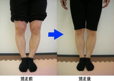 【肩こり・腰痛・骨盤矯正!】筋膜リリース・筋膜療法 全身コースのイメージその2