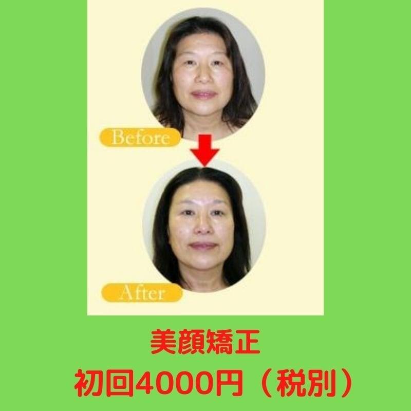 【1回で効果がわかる】美顔矯正 /小顔効果・リフトアップ効果抜群のイメージその1