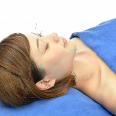 美容はり(全身の鍼灸治療+お顔エステ+美容はり)《耳つぼシールサービス!》