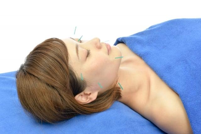美容はり(全身の鍼灸治療+お顔エステ+美容はり)《耳つぼシールサービス!》のイメージその1
