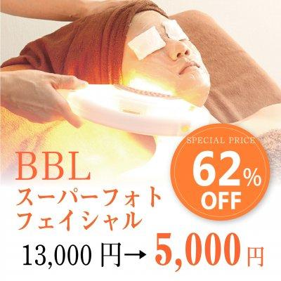 BBLスーパーフォトフェイシャル【有効期限 6月20日までの限定チケット】