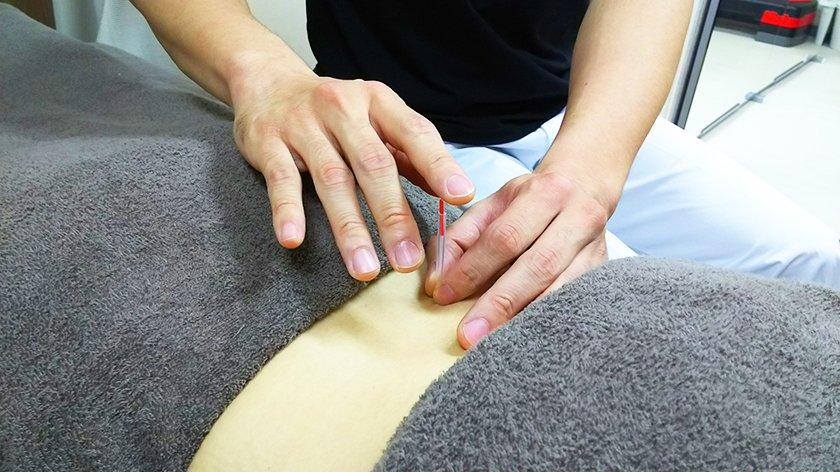 鍼灸施術(1ヶ所)のイメージその1