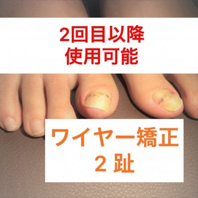 二指 ワイヤー矯正 【二回目以降使用可能クーポン】神戸三宮の巻き爪ケア