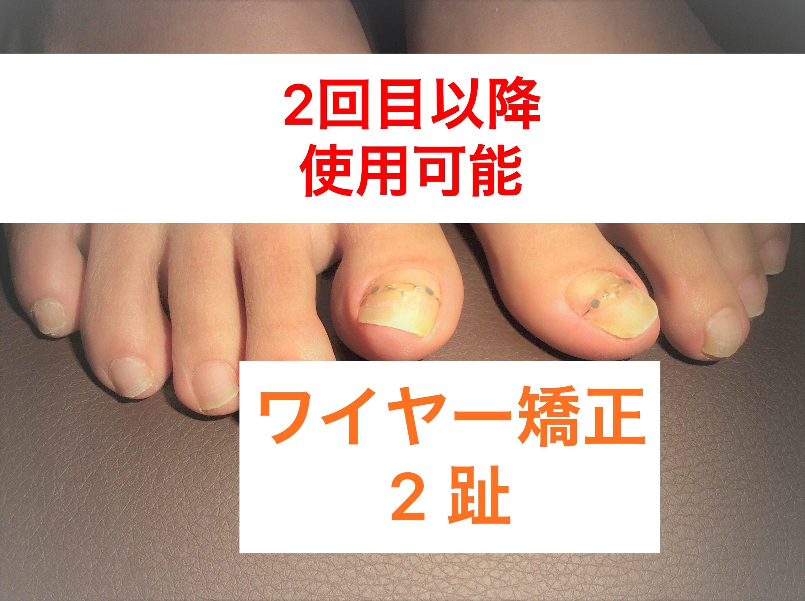 二指 ワイヤー矯正 【二回目以降使用可能クーポン】神戸三宮の巻き爪ケア のイメージその1