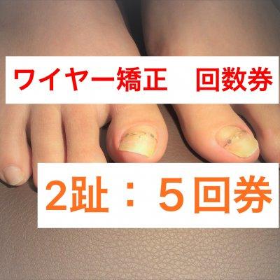 巻き爪2趾5回券 ワイヤー矯正(指2本分)神戸三宮の巻爪ケア 痛くない!根元から形をかえる!【現地払い】