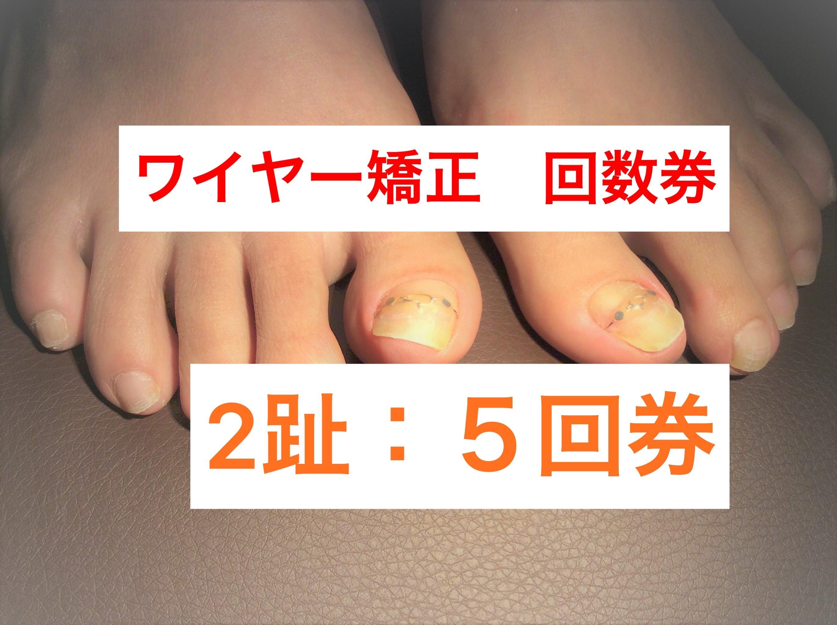 巻き爪2趾5回券 ワイヤー矯正(指2本分)神戸三宮の巻爪ケア 痛くない!根元から形をかえる!【現地払い】のイメージその1