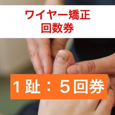 巻き爪1趾5回券 ワイヤー矯正(指1本分)神戸三宮の巻爪ケア 痛くない!根元から形をかえる!【現地払い】