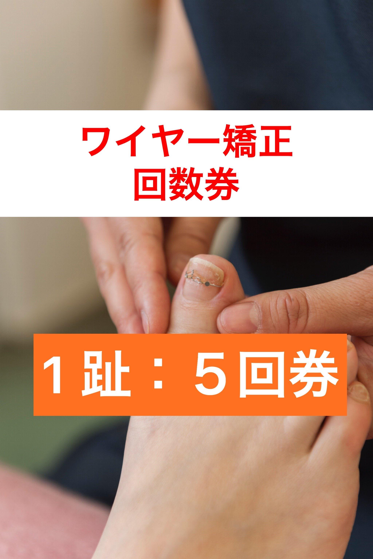 巻き爪1趾5回券 ワイヤー矯正(指1本分)神戸三宮の巻爪ケア 痛くない!根元から形をかえる!【現地払い】のイメージその1