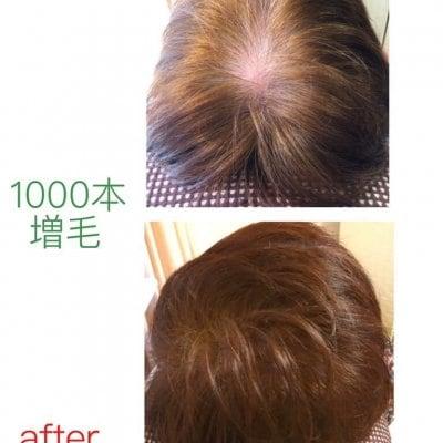 【1時間付け放題】髪の毛ふんわりアップ増毛