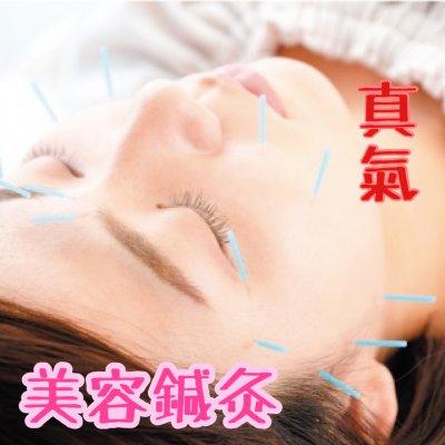 松本市美容鍼灸サロンShinkiの美容鍼灸はしみ、しわ、たるみの改善、フェイスラインのアップ、目をぱっちりにするウェブチケット