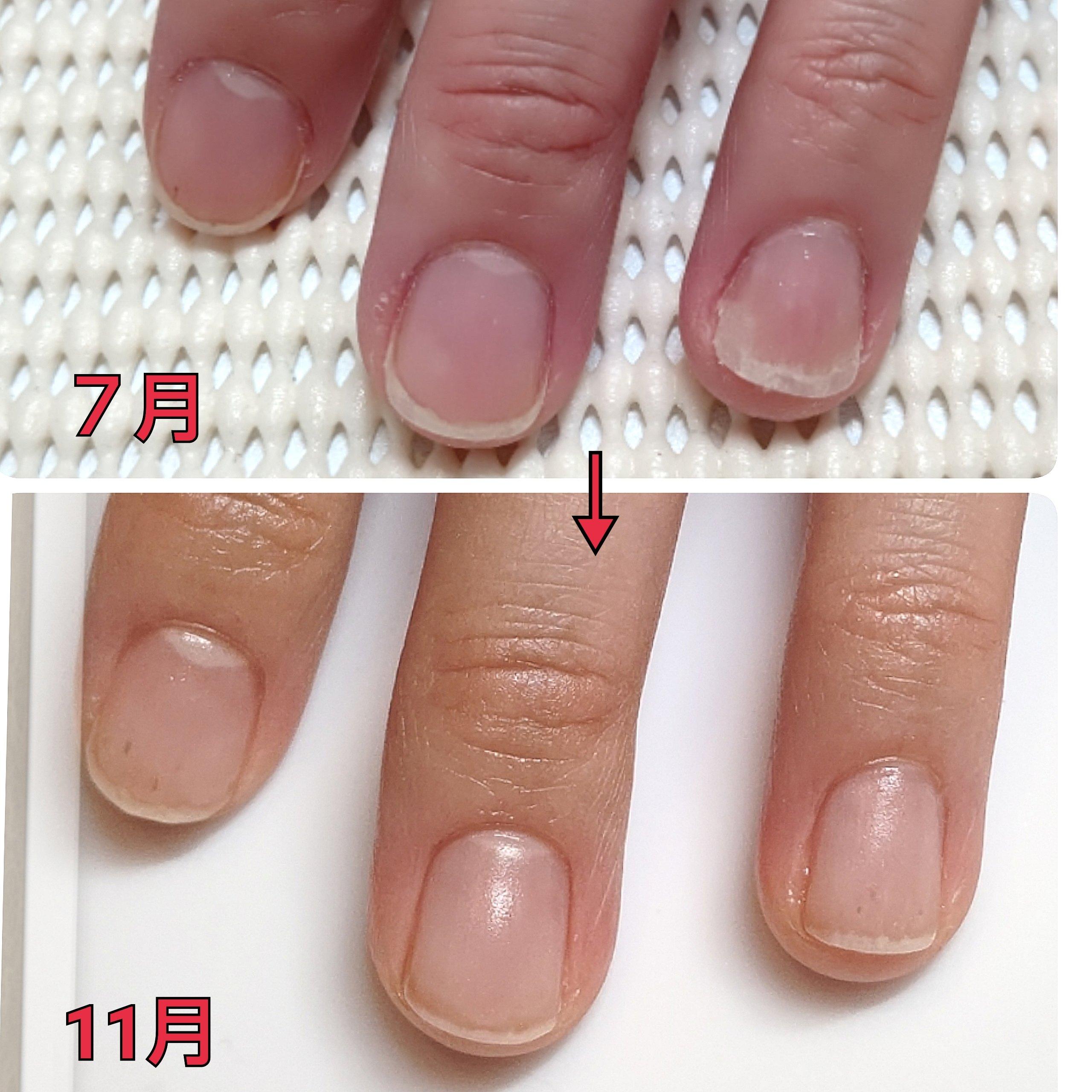 爪の育成コースのイメージその4