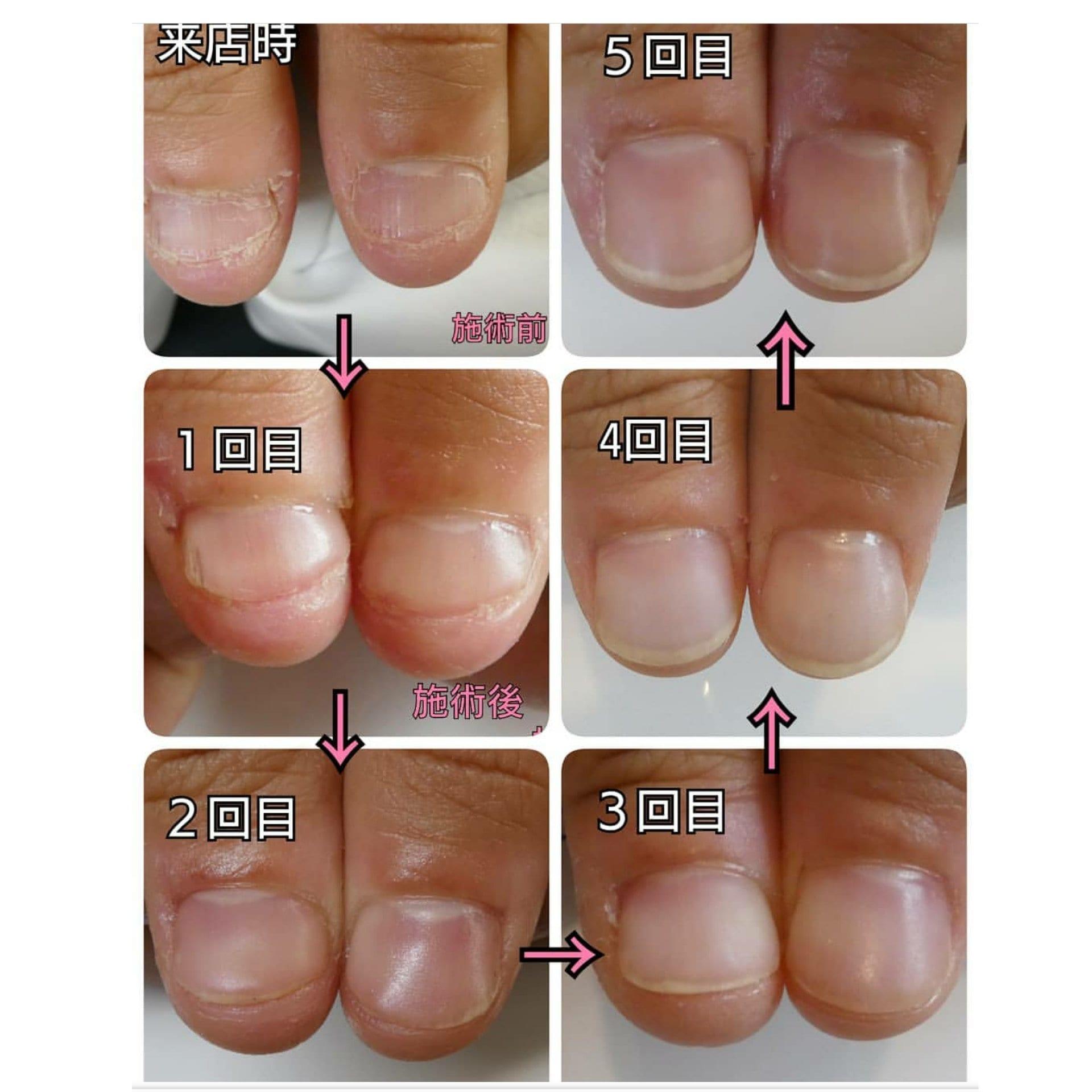 爪の育成コースのイメージその2