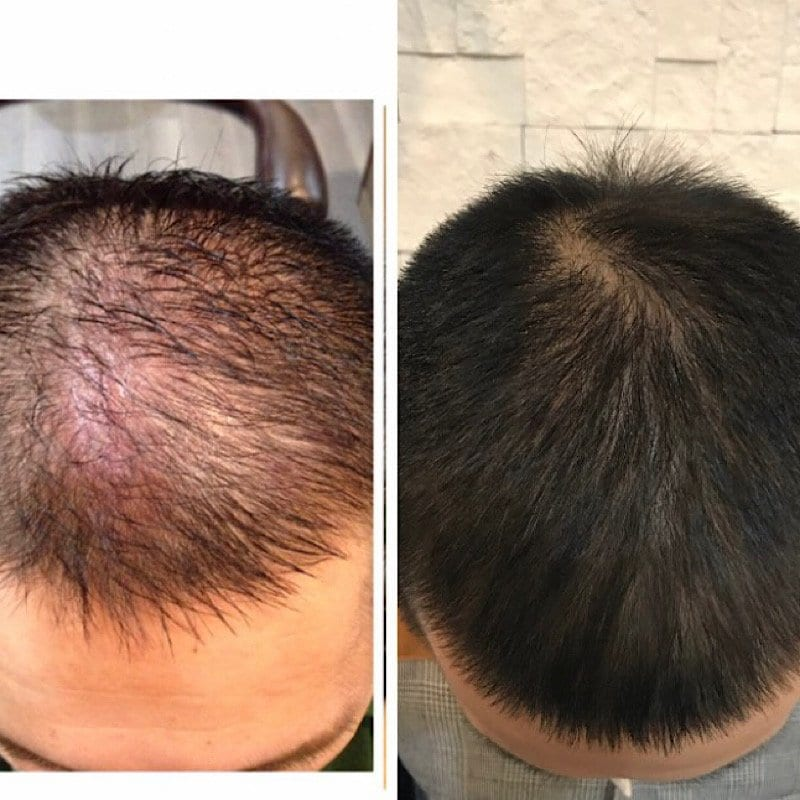 幹細胞で髪を育てるコース(1回)のイメージその1