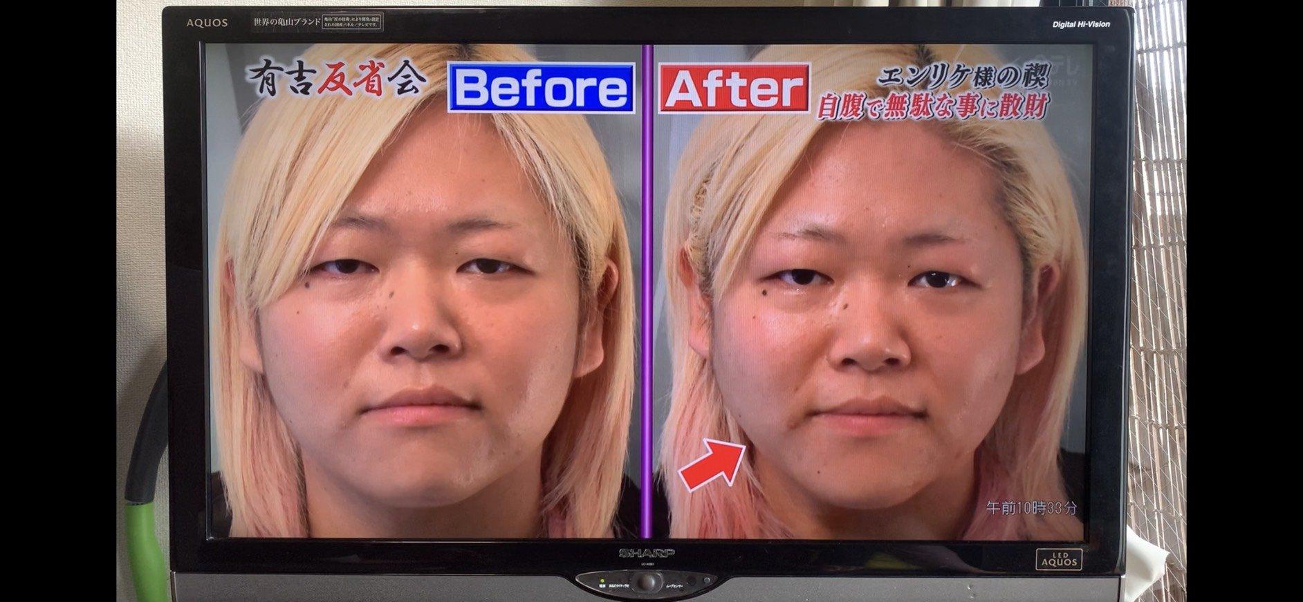 【まずはお試ししたい人♪】日本テレビ[有吉反省会]出演特別メニュー 小顔矯正(60分)¥19,250→¥5,940(税込)/結果が出る実力派サロン|小顔矯正|リンパ|銀座|池袋【デトックスエステSEAS】のイメージその3