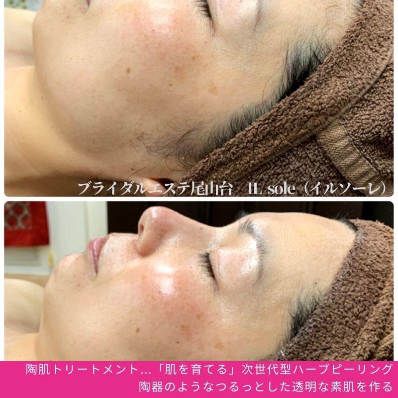 【初回限定】REVI陶肌トリートメント70+半顔デモ体験30|剥かないハーブピール|痛くないハーブピールのイメージその2