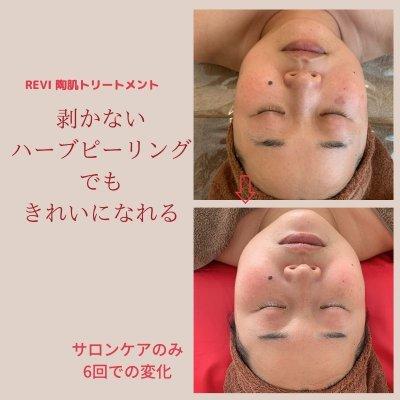 【初回限定】REVI陶肌トリートメント70|剥かないハーブピール|痛くないハーブピール