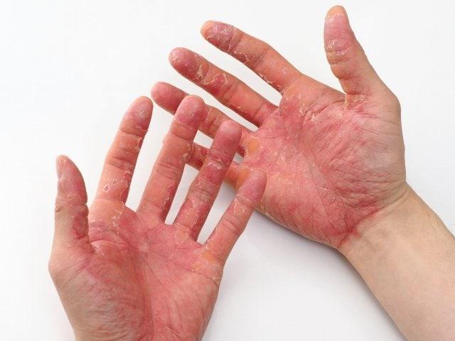 【スキンケア】手荒れ、肌の健康相談コース(30分)のイメージその3