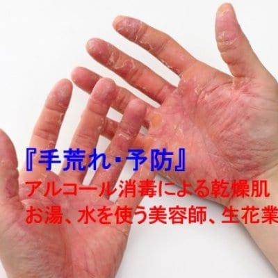 【スキンケア】手荒れ、肌の健康相談コース(30分)