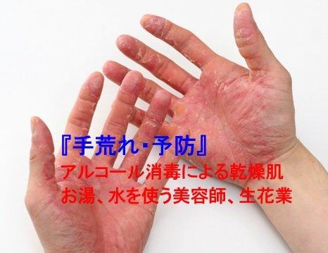 【スキンケア】手荒れ、肌の健康相談コース(30分)のイメージその1