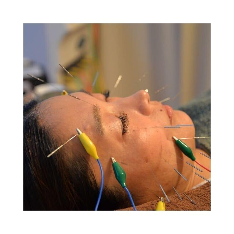 美容鍼40分、パルス(電気)鍼コース、回数券6回分のイメージその1