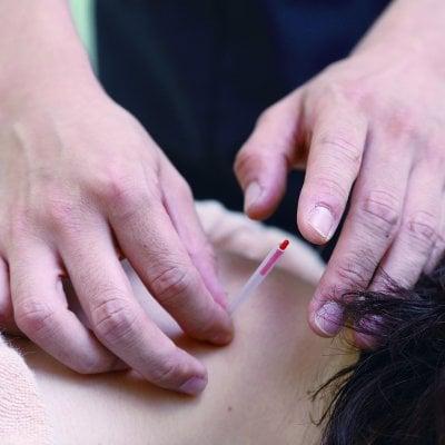 会場参加【第2回】明日から使える鍼灸治療(腰背部編)〜部位ごとの鍼灸治療法を身につける〜