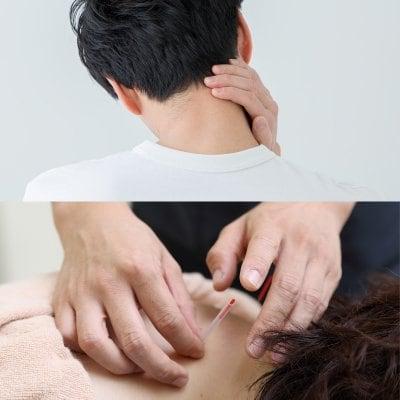 オンライン参加【第1回】明日から使える鍼灸治療(頚肩部編)〜部位ごとの鍼灸治療法を身につける〜