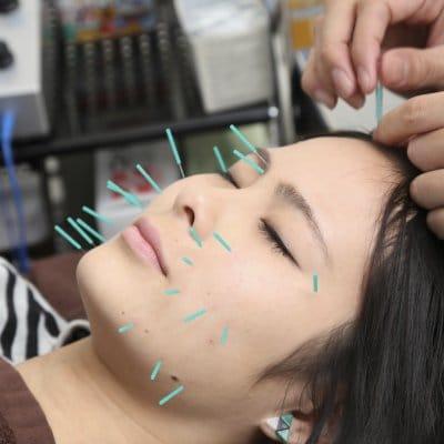 美容鍼+ボディメンテナンス15分 しわやたるみの改善。小顔リフトアップに最適な美容鍼をボディメンテナンスとセットでより効果を引き出します。