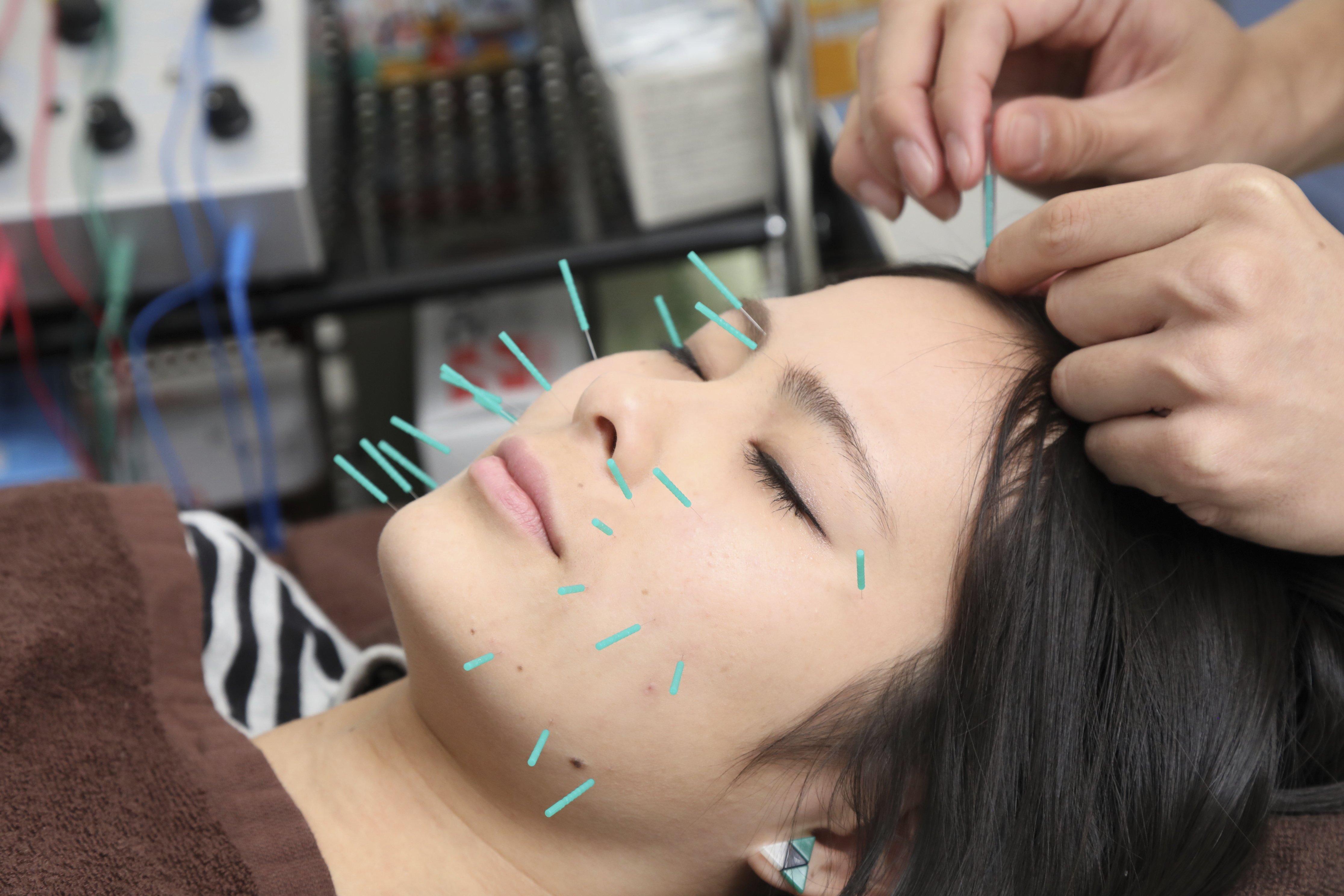 美容鍼+ボディメンテナンス90分 しわやたるみの改善。小顔リフトアップに最適な美容鍼をボディメンテナンスとセットでより効果を引き出します。のイメージその4