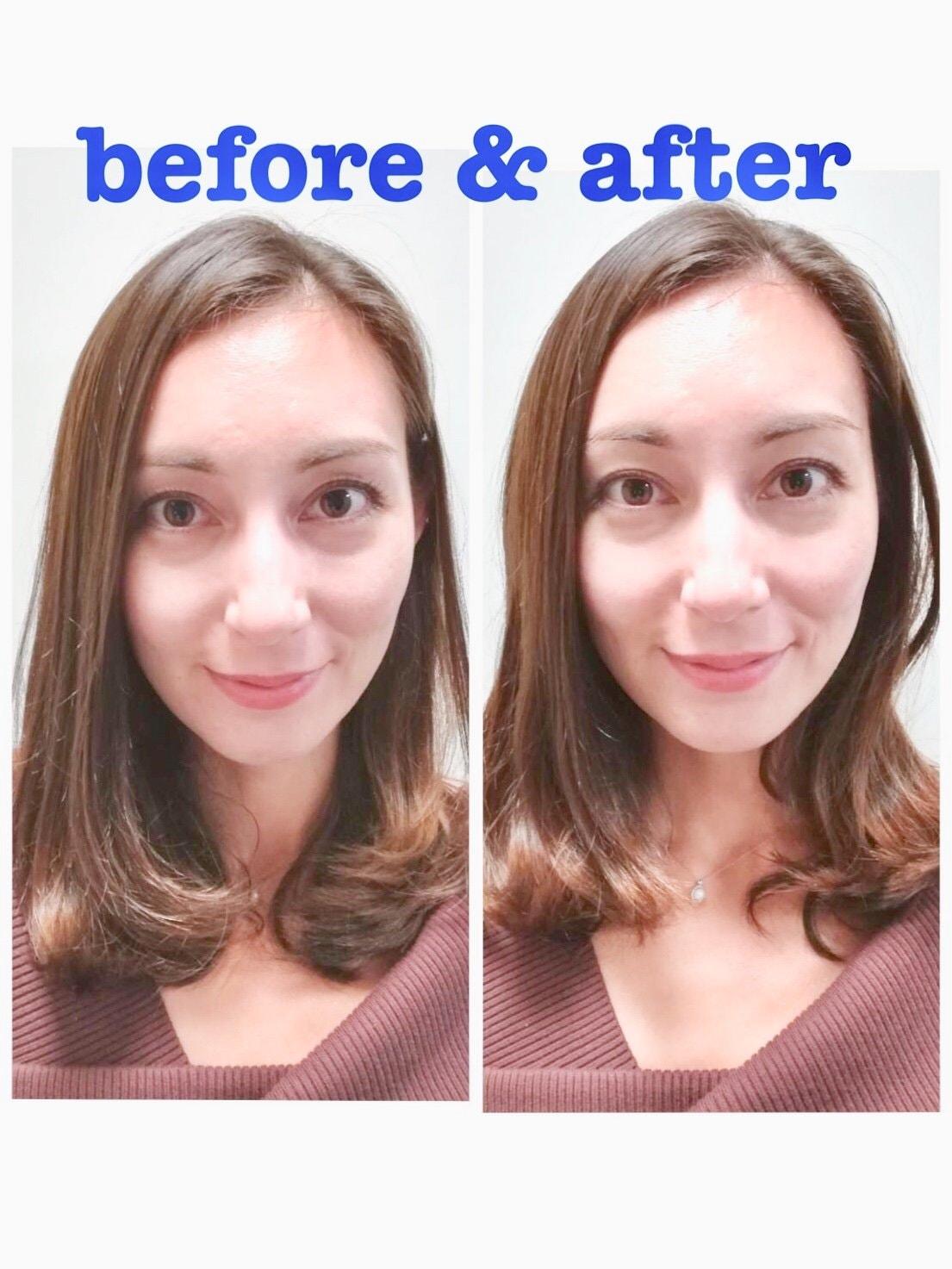 初回限定!美容鍼+ボディメンテナンス30分 通常¥11000 → ¥5980 しわやたるみの改善。小顔リフトアップに最適な美容鍼をボディメンテナンスとセットでより効果を引き出します。のイメージその4