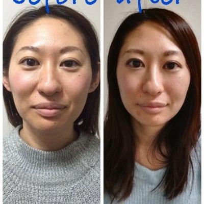 美容鍼+ボディメンテナンス60分 しわやたるみの改善。小顔リフトアップに最適な美容鍼をボディメンテナンスとセットでより効果を引き出します。