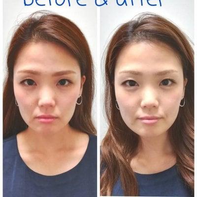 美容鍼+ボディメンテナンス90分 しわやたるみの改善。小顔リフトアップに最適な美容鍼をボディメンテナンスとセットでより効果を引き出します。