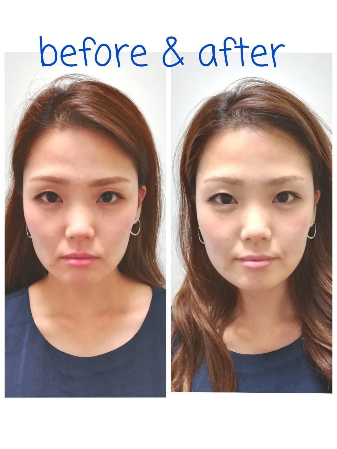 美容鍼+ボディメンテナンス90分 しわやたるみの改善。小顔リフトアップに最適な美容鍼をボディメンテナンスとセットでより効果を引き出します。のイメージその1