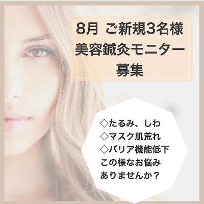 8月インスタ限定 美容鍼灸モニター