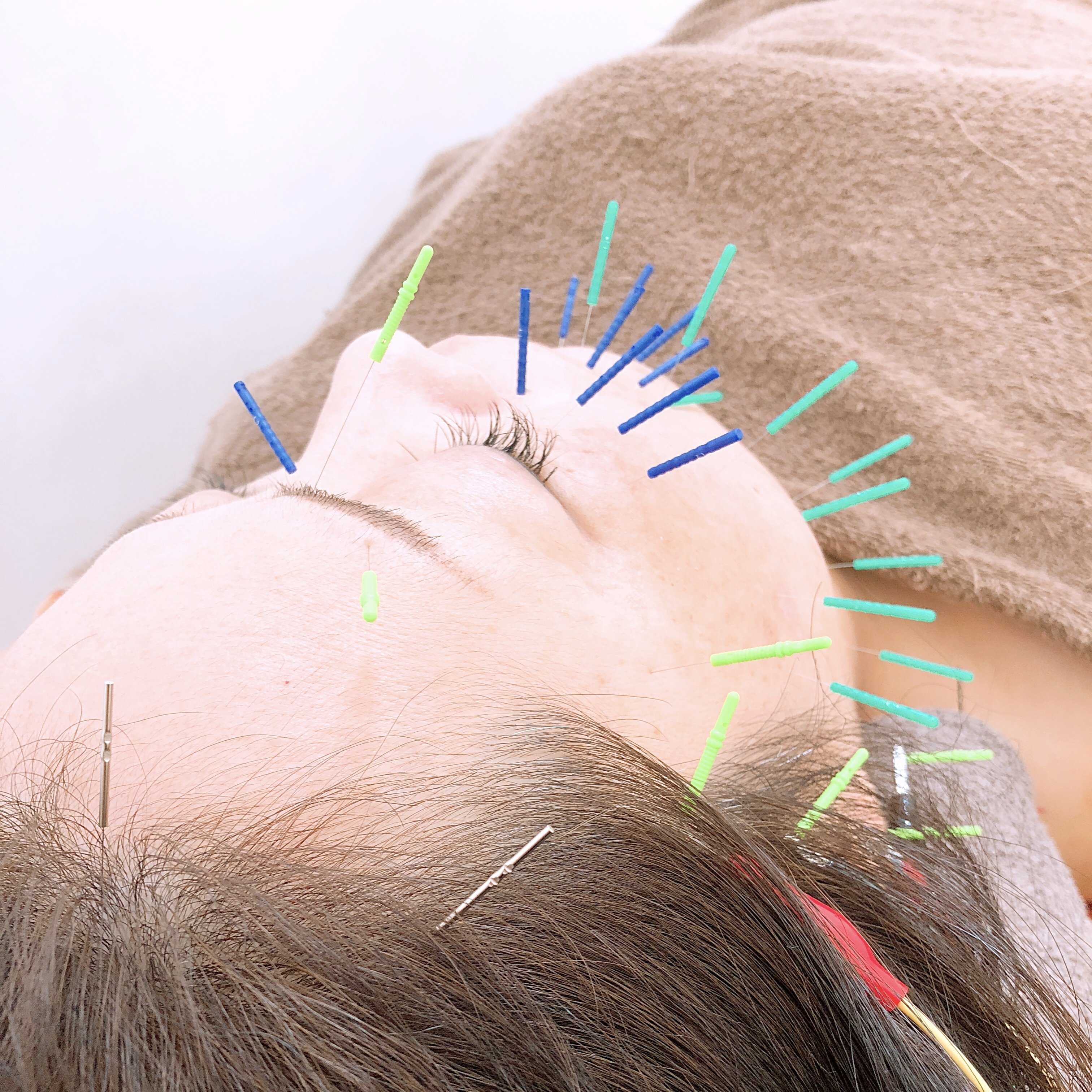 トップクオリティー美容鍼のイメージその1