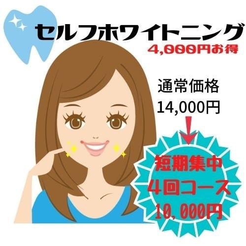 歯のセルフホワイトニング【短期集中4回コース】【通常価格14,000円⇒10,000】のイメージその1