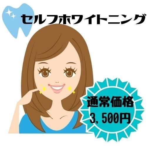 歯のセルフホワイトニング【通常価格】のイメージその1