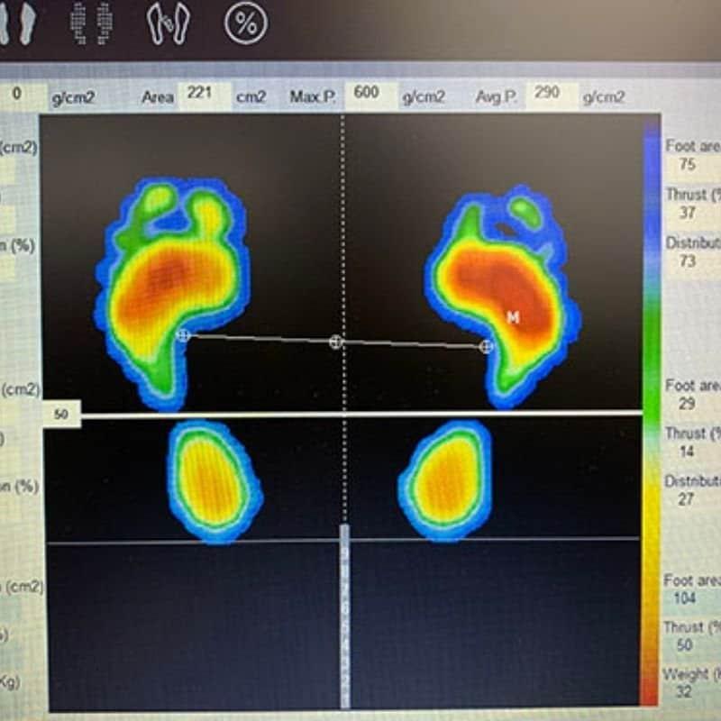 足の分析・診断 DISPAROのイメージその1