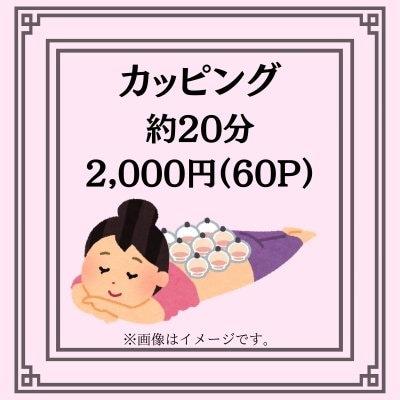 カッピング(約20分)(吸い玉)2000円