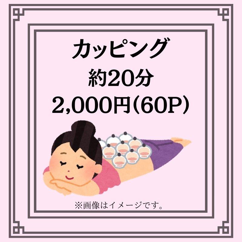 カッピング(約20分)(吸い玉)2000円のイメージその1
