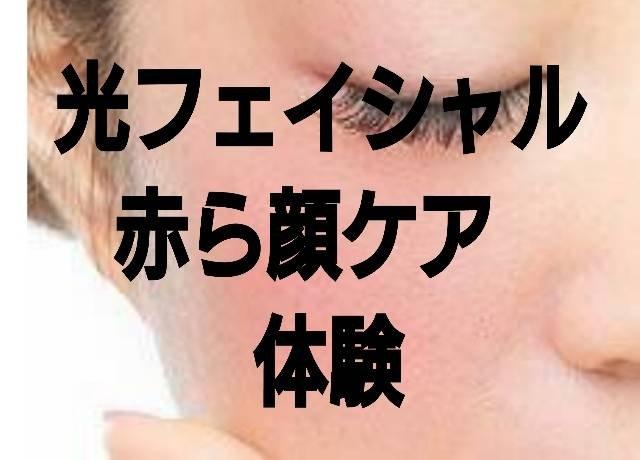 光フェイシャル体験 赤ら顔のイメージその1
