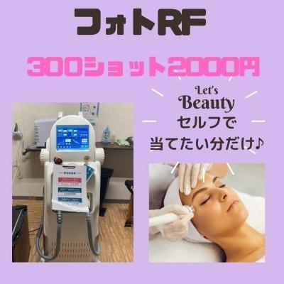 セルフで美顔♡フォトRF 50〜300ショット