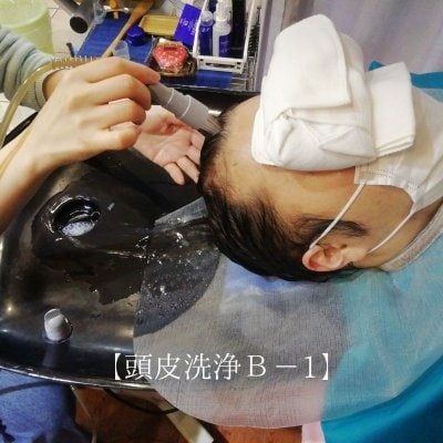 【頭皮洗浄 B-1】