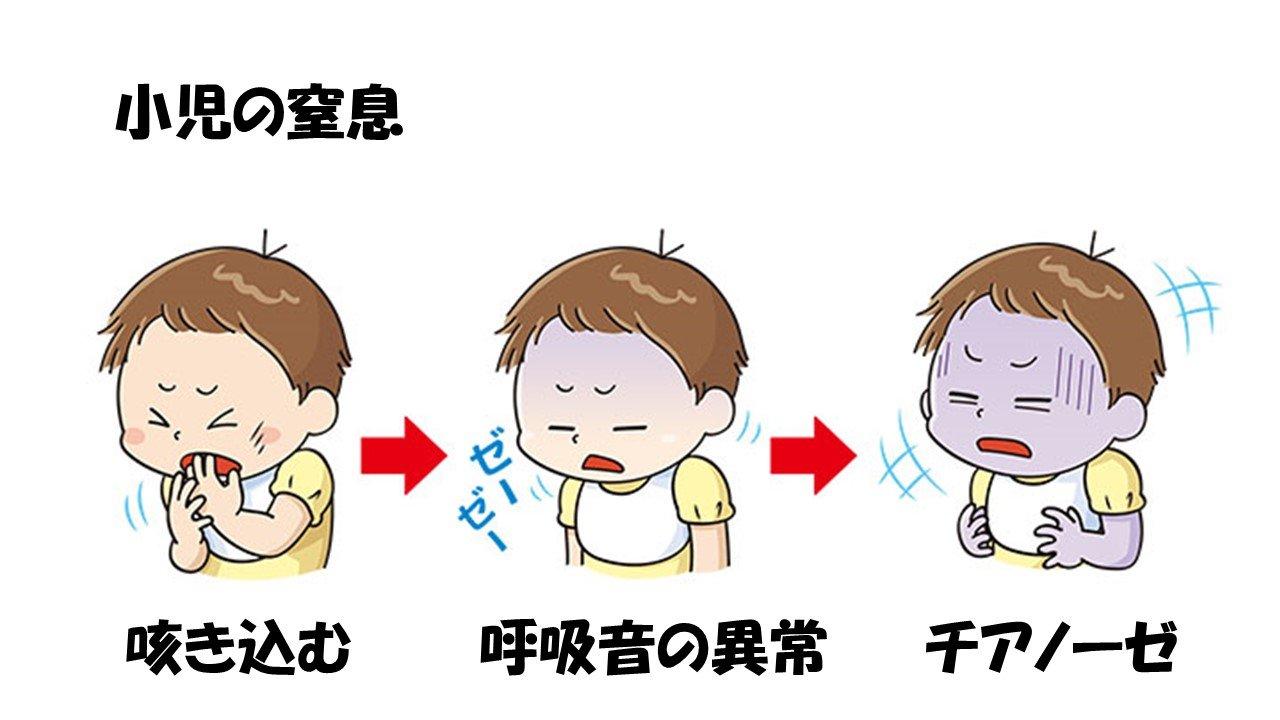 乳幼児の窒息・異物誤飲の対応についての勉強会 9/19 21時〜のイメージその5