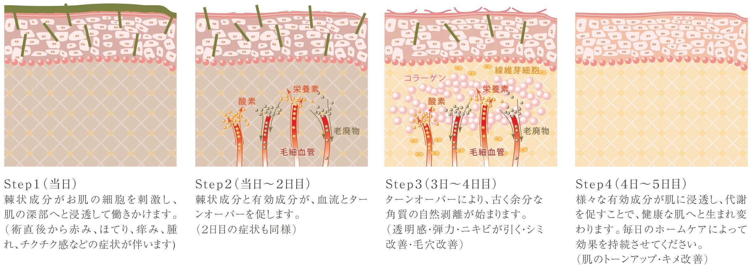 松戸市・美容外科クリニック提携店リベルハーブピーリング・トータルボディメンテナンスのレジーナ